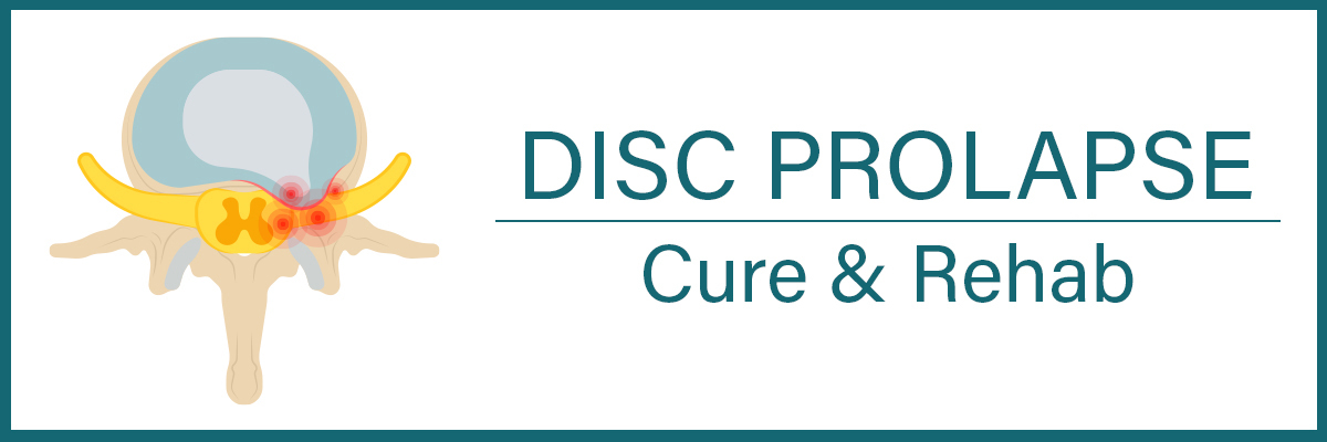 Disc Prolapse